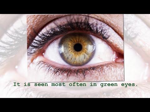 Central Heterochromia