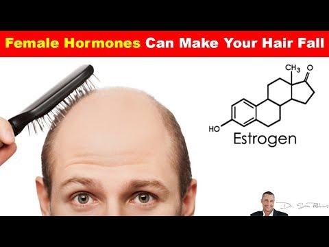 🤦🏻♀️ Female Hormones Can Make Your Hair Fall - Hair Loss Part 4