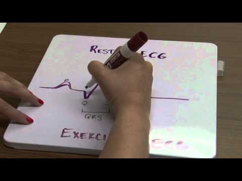 Electrocardiography 2012 (Part 2)