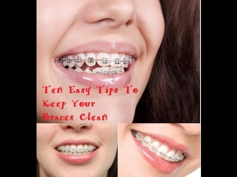 10 Tips To Keep Your Braces Clean | 10 Tips To Keep Your Braces Clean