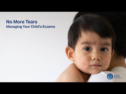 Managing Your Child's Eczema Webcast