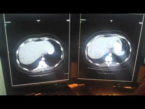 CT Scan Results- 11.12.10