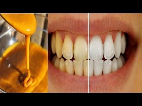 Homemade Toothpaste to Whiten Teeth & Reverse Gum Disease using Tumeric, Coconut oil & Peppermint