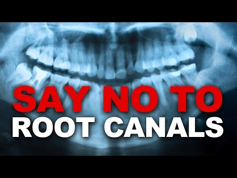 Say NO to Root Canals - Damaging to your Health