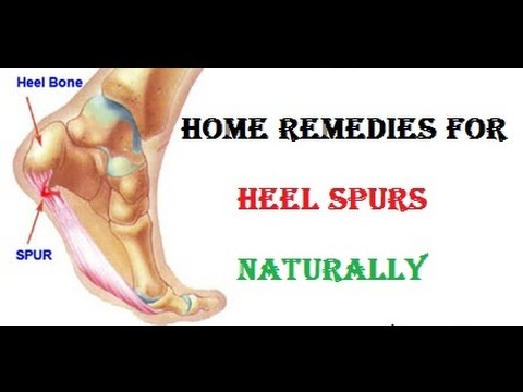 Home Remedies for Heel Spurs naturally