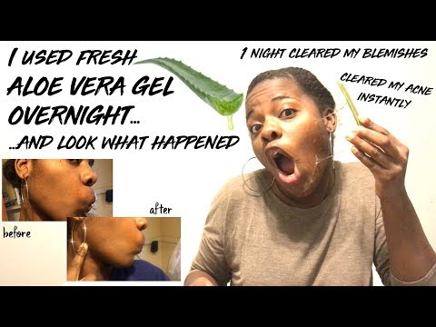 I USED FRESH ALOE VERA GEL OVERNIGHT FOR 1 NIGHT AND LOOK WHAT HAPPENED | CLEAR SKIN INSTANTLY