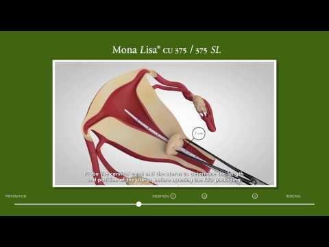 Mona Lisa Cu375/375 SL Insertion Video