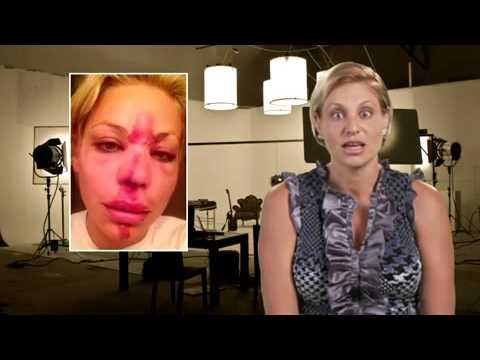 How To Fade Deep Facial Scars by stimulating skin remodelling phase Video review by Dr Dave David