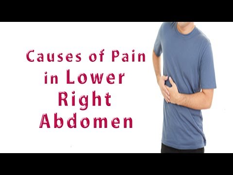 Abdominal Pain Right Side – Common Causes of Pain in the Lower Right Abdomen
