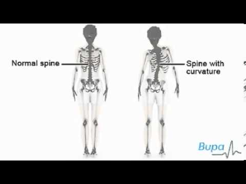 How idiopathic scoliosis occurs