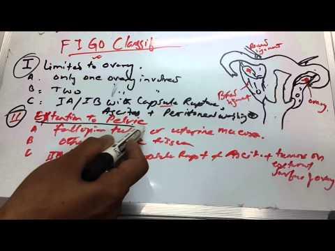 Ovarian Cancer 2 of 3 ( FIGO Staging)
