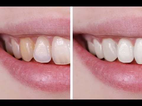 How to Whiten Teeth Naturally - HOME REMEDIES