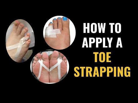 Dr. Pelto Applying A Toe Strapping