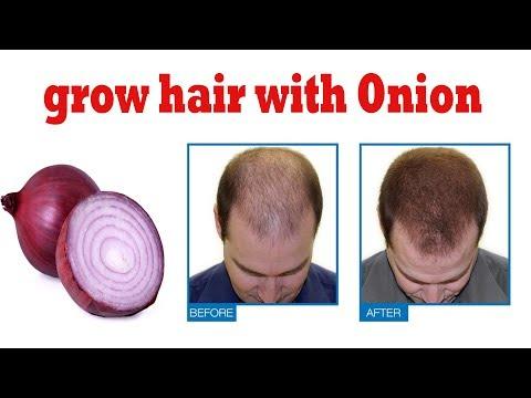 how to grow hair with Onion || health benefits of onion | Hair Growth, Hair Fall, Long Hair