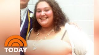 See The Healthy Meals That Helped 1 Young Woman Lose 150 Pounds | TODAY