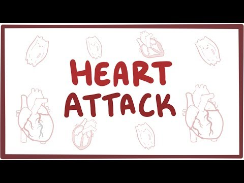 Heart attack (acute myocardial infarction) - causes, symptoms, diagnosis, treatment, pathology