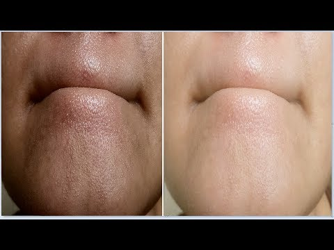 i removed my BLACKHEADS permanently in 1 week,Remove BLACKHEADS & WHITEHEADS from nose, Chin & face