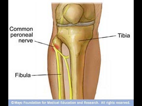 Common fibular nerve injury - Injury to lateral aspect of the leg at knee level - Explanation
