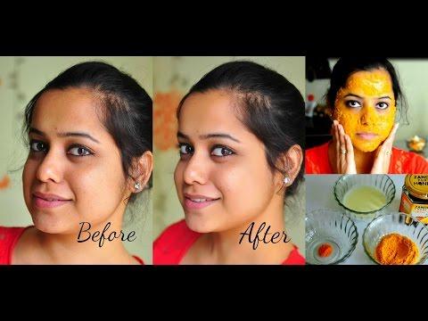 Face Mask For Dark Spots, Acne Marks & Pigmentation  DIY  Stylepeaks