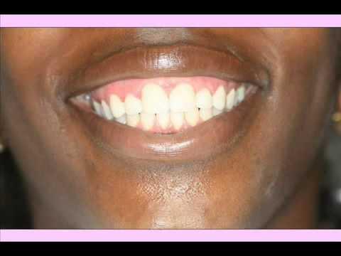 Pink Gums Now - International Laser Dentistry - Dr. Gary Bram, Bayside NY