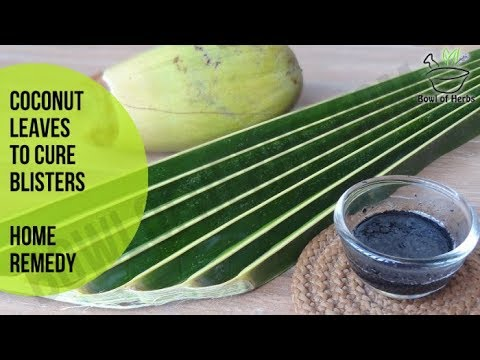 Coconut tree leaves to treat friction blisters - Alternative medicine