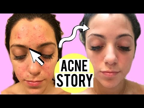 My Acne Story: Clogged Pores to Clear Skin | How I cleared my Skin