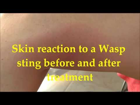 Effect of a wasp sting on the skin before and 48 hours after treatment