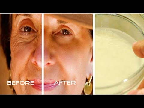 Say Goodbye to Wrinkles! She LOOKS 10 YEARS YOUNGER with This SIMPLE INGREDIENTS Here We EXPLAIN