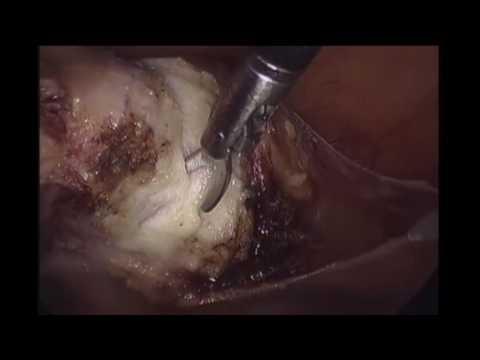 Xxx Mp4 Total Laparoscopic Hysterectomy 3gp Sex