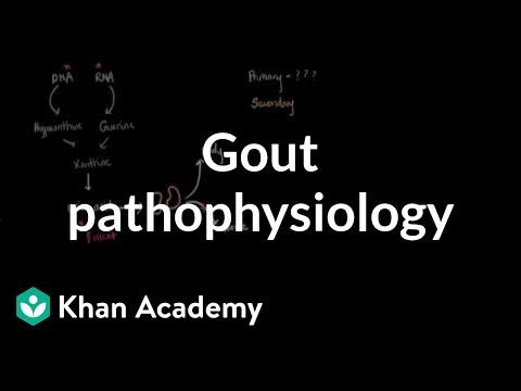 Gout pathophysiology | Muscular-skeletal diseases | NCLEX-RN | Khan Academy