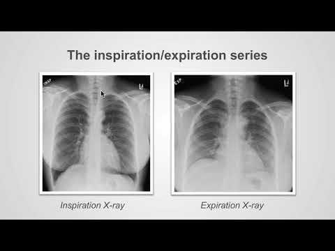 Types of X-Ray examinations