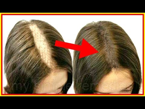My 1 Inch Hair Were Falling Everyday, Then i Tried This Treatment & It Regrow My Hair