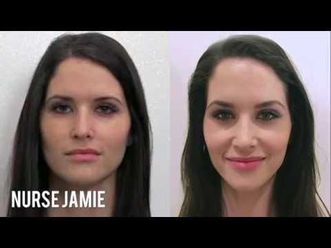 Before and After - Facial Cupping - E News