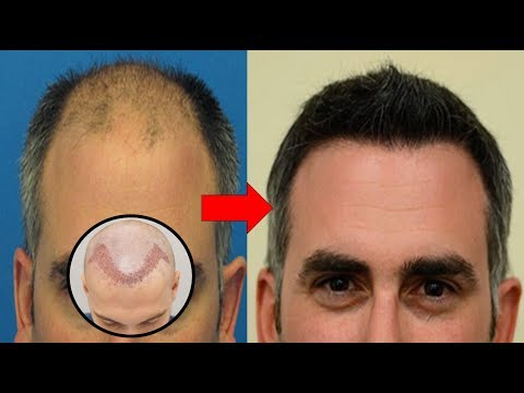 Benefits of an Experienced Hair Transplant Surgeon