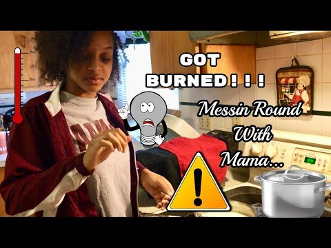 OH NO.... I Got Burned!!! Messin Round With Mama!