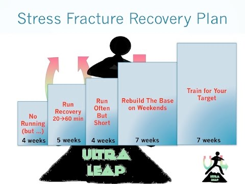 Back to run after Stress Fracture: Prevent, Diagnose, Recovery Plan!