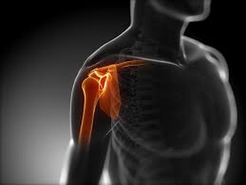 THE BEST on Fixing an AC joint impingement( Level 1 mild inflammation) by the shoulder wizard