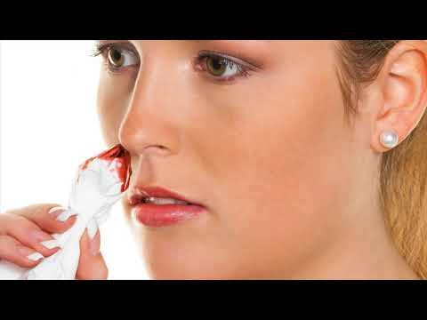 What Is Nose Bleeding - Home Remedies To Treat Nose Bleeding