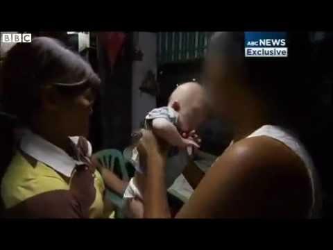 BBC News   Australian couple abandon surrogate Down Syndrome baby