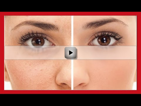 How to Get Rid of Acne Scars Naturally and Fast Overnight?