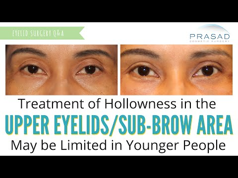 Treating Hollowness in Upper Eyelids - Common in Aging, Not Common in Young Skin