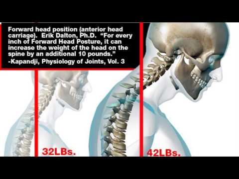 Forward Head Posture / Texting Causes Neck & Upper Back Pain (Pinched Nerve)  - Dr Mandell