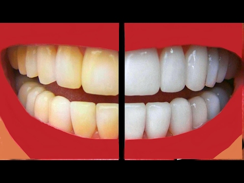 How To make Your Teeth White At Home In Just A Few Days