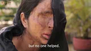 Meet Sheela    Make Love Not Scars   The Logical Indian   फेसबुक