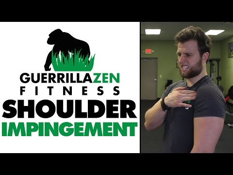 Exercises to AVOID If You Have Shoulder Impingement