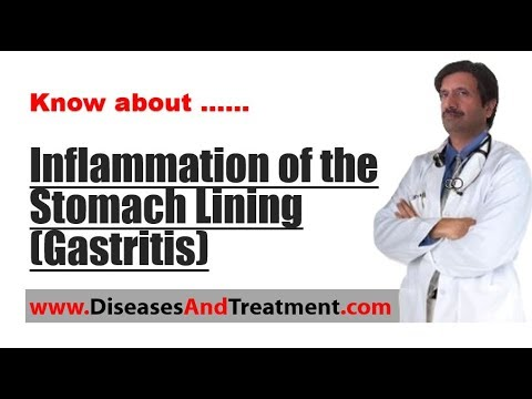 Inflammation of the Stomach Lining (Gastritis)  : Causes, Symptoms, Diagnosis, Treatment, Prevention