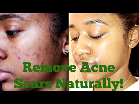 How to: Remove My Acne Scars Naturally| Essential Oils, Derma Roller + More!
