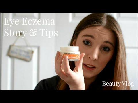 Eye Eczema Help   My Story + My Miracle Cream   Lux Life