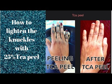 How to lighten the knuckles with 25%Tca peel