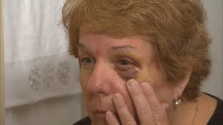 Woman Nurses Black Eye After She
